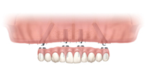 4 dental implants to the upper jaw